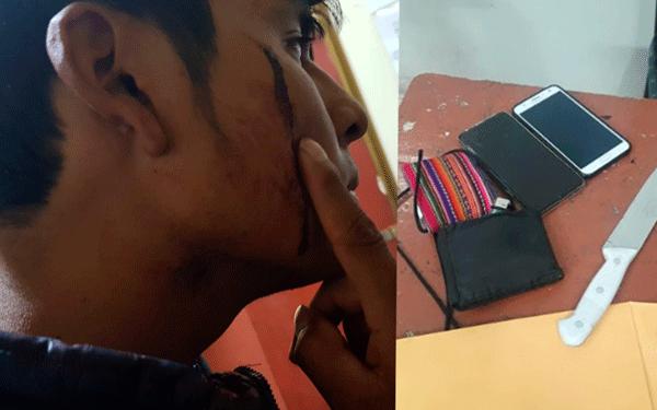 Victima quedo con heridas en la cara tras ser atacado por jóvenes.