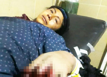 Joven terminó en una camilla luego de ser herida de una bala.