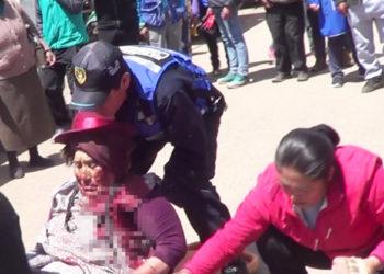 Anciana fue atropellada por una moto carga.