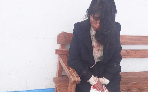 Pareja de la joven la golpeo hasta sacarle sangre.
