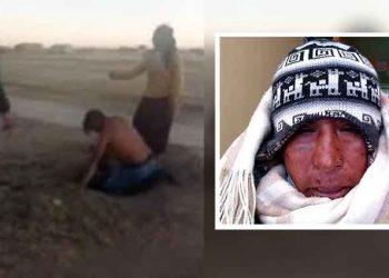 Padre pide justicia luego que su hija y pareja lo agredan salvajemente en Juliaca